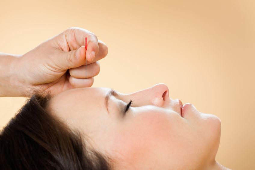 Victoria Acupuncture